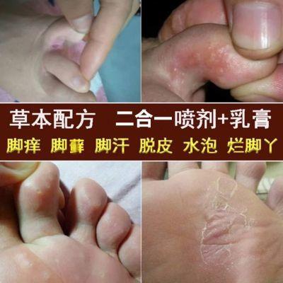 净癣肤王去脚气药喷剂脱皮水泡脚癣大腿内侧瘙痒抑菌草本止痒膏