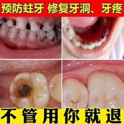 去牙疼牙痛喷剂去除牙周炎立可停牙痛宁蛀虫蛀牙上火牙龈肿痛