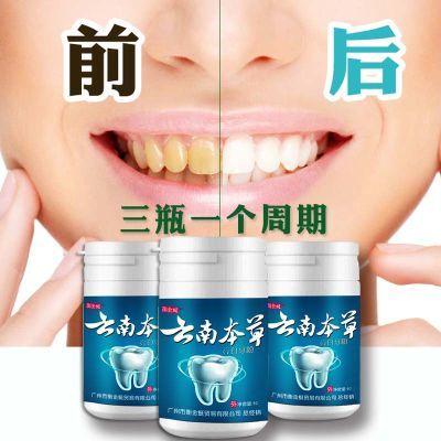 【牙医推荐】牙白人更美牙齿美美器美白牙齿洗牙粉去牙渍去口臭