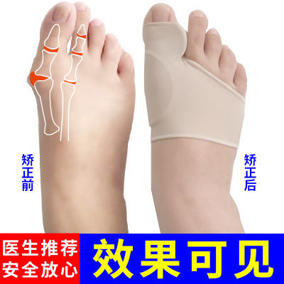 大脚趾拇指外翻矫正器大脚骨成人日夜用可穿鞋女士大脚趾头分离器