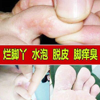 狼毒脚气喷剂脚气药套装去脚气脚痒脱皮烂脚丫水泡型止痒脚气药膏
