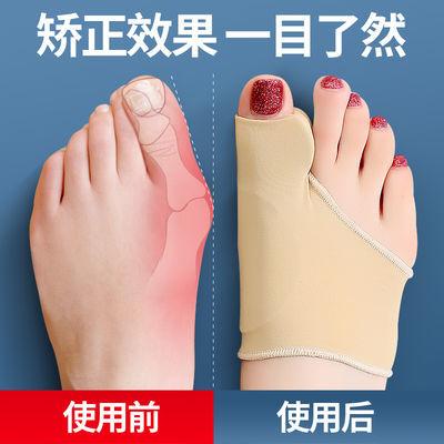 大脚趾拇指外翻矫正器日夜用成人可穿鞋男女士大脚骨拇外翻分趾器