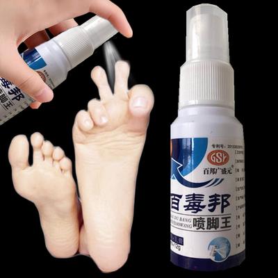 去脚气脚臭脚痒脚气膏止痒脱皮水泡烂脚喷剂脚裂膏脚后跟干裂克星