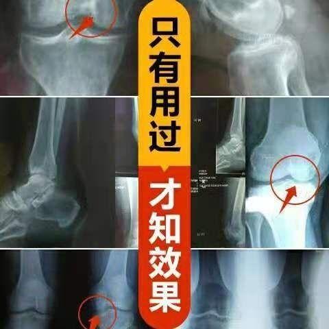 风湿肩周炎 腰椎间盘突出颈椎病腰腿疼痛坐骨神经痛 专用黑膏药贴