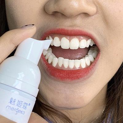 【一瓶抵五瓶洗牙粉】不白退全款美白牙齿清新口气脱色剂牙泡白