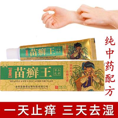 苗药膏止痒皮肤病皮炎湿疹膏牛皮癣过敏性皮肤瘙痒牛皮癣药膏正品