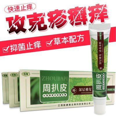 【周扒皮】草本抑菌止痒膏针对皮肤过敏瘙痒顽固皮肤细菌乳膏