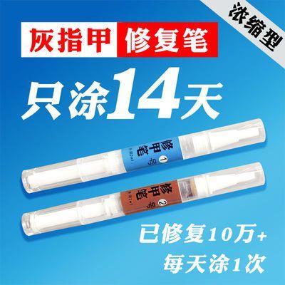 金夫子灰指甲特效水 抑菌液治疗去除快速修复笔 亮甲增厚软甲膏