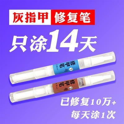 金夫子灰指甲特效水快速修复笔 抑菌液治疗去除 亮甲增厚软甲膏