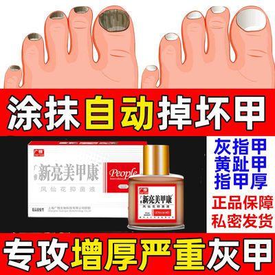 灰指甲正品增厚新亮甲油透明抑菌液学生去除灰甲康专用