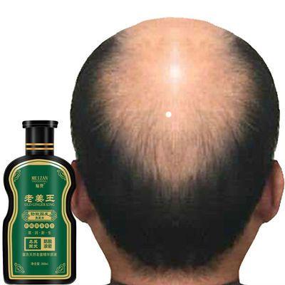 老姜王草本植物防脱发生发增发除螨洗发水生姜滋养控油去屑洗发水