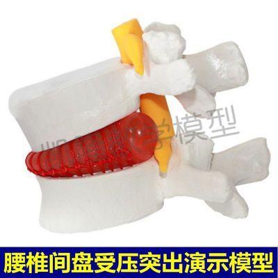 腰椎间盘受压迫神经突出演示模型脊骨脊柱结构医用正骨推拿人体