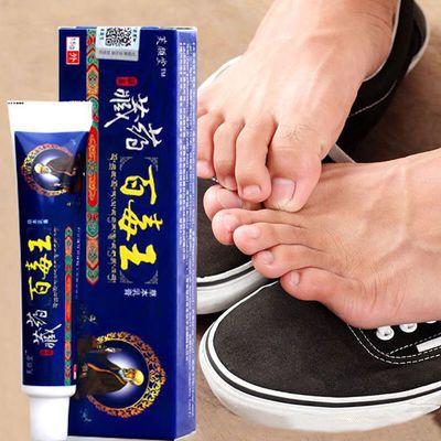 脚气脚臭脚汗膏止痒药膏脱皮脚痒烂脚丫脚气膏皮炎湿疹皮肤瘙痒药