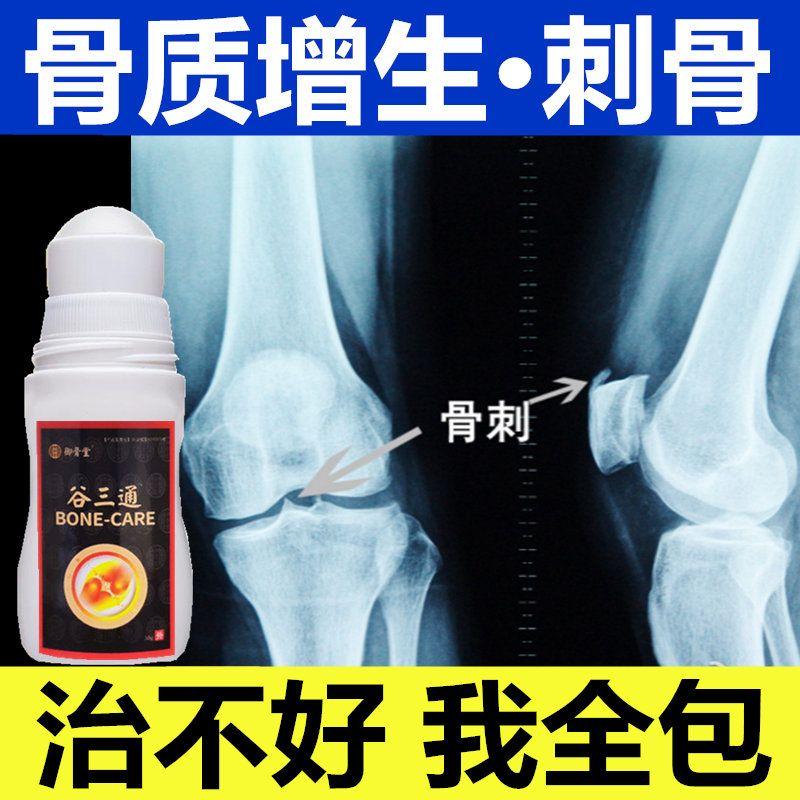骨质增生膏药膝关节骨刺足跟骨刺骨质增生一擦灵骨关节退行性改变