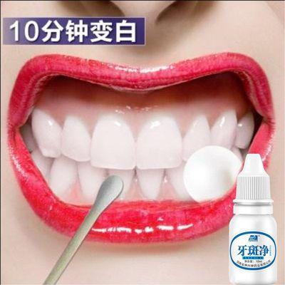 【一擦见效】去黄牙垢结石牙渍茶渍烟渍脱色剂牙斑净牙齿美白神器