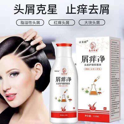 头皮毛囊炎屑痒净去屑止痒神器脂溢性头皮肤消毒痒癣的去屑洗发水