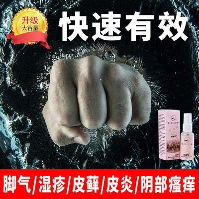 紫贝沉香烫伤刀伤脚气皮肤癣皮炎湿疹止痒去痛过敏性瘙痒外用喷雾