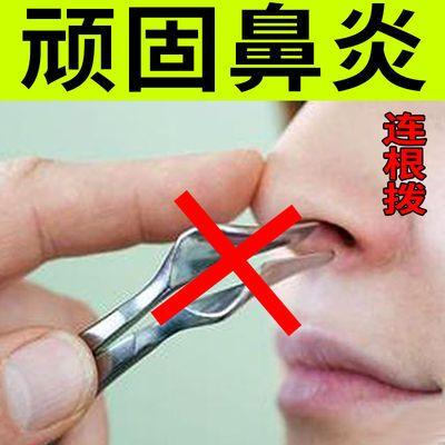 【不治全退】鼻炎药特效成人过敏性鼻炎喷剂喷雾鼻塞鼻窦炎鼻炎药