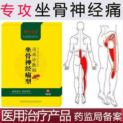 坐骨神经痛膏药贴腰椎压迫神经引起屁股大小腿外侧放射性疼痛麻木