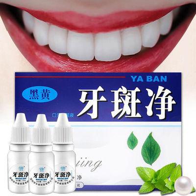 黄牙烟牙菌斑黑渍洗牙液洗白黑黄牙齿美白神器速效去美白除口臭