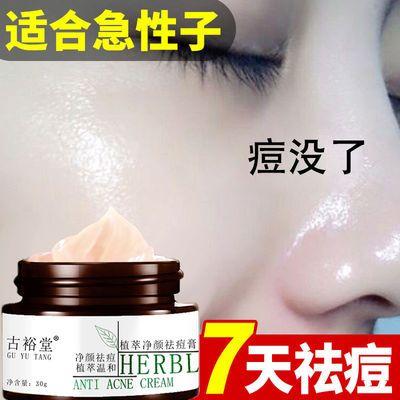 祛青春痘痘神器祛痘膏霜精华液淡化去祛痘印痘坑修复闭口粉刺学生