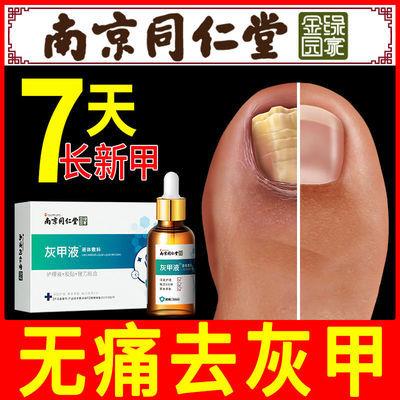 【轻松搞定灰指甲】快速去除灰指甲特效专用液亮甲软甲甲沟炎增厚
