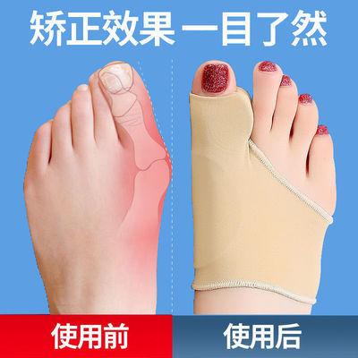 脚趾矫正器大拇指矫正器拇指外翻矫正器大拇脚趾纠正硅胶可穿鞋薄