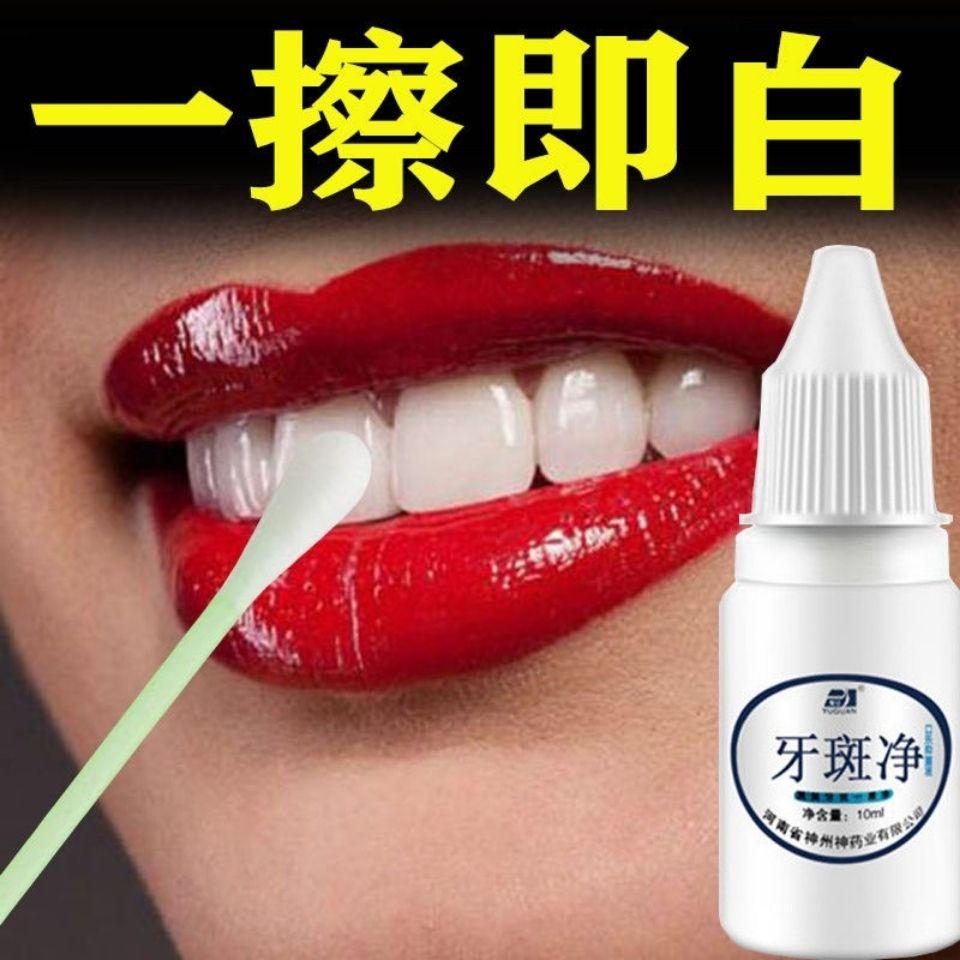 【一擦见效】牙斑净速效去除牙渍茶渍烟渍咖啡渍食物色素美白牙齿