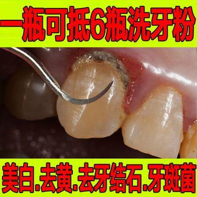 洁牙慕斯牙齿速效去黄洗白去牙结石去烟渍亮洁牙亮白除污垢神器