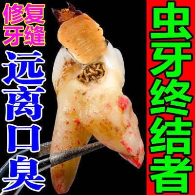 牙疼虫牙牙洞牙疼特效止痛牙膏牙齿脱落牙齿酸痛牙龈萎缩修复牙膏
