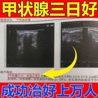 32730/【冶好上万人】甲状腺结节贴功能亢进甲亢甲减脖子粗大眼突结节贴