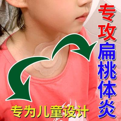 小儿咽扁贴慢性咽喉炎扁桃体发炎喉咙嗓子肿痛腺样体肥大特效贴剂