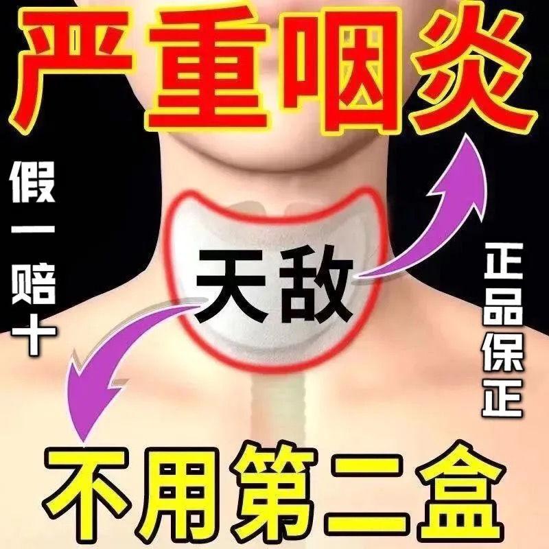 咽炎贴【严重咽炎】滤泡增生急慢性咽喉肿痛干痒干咳有痰异物感贴
