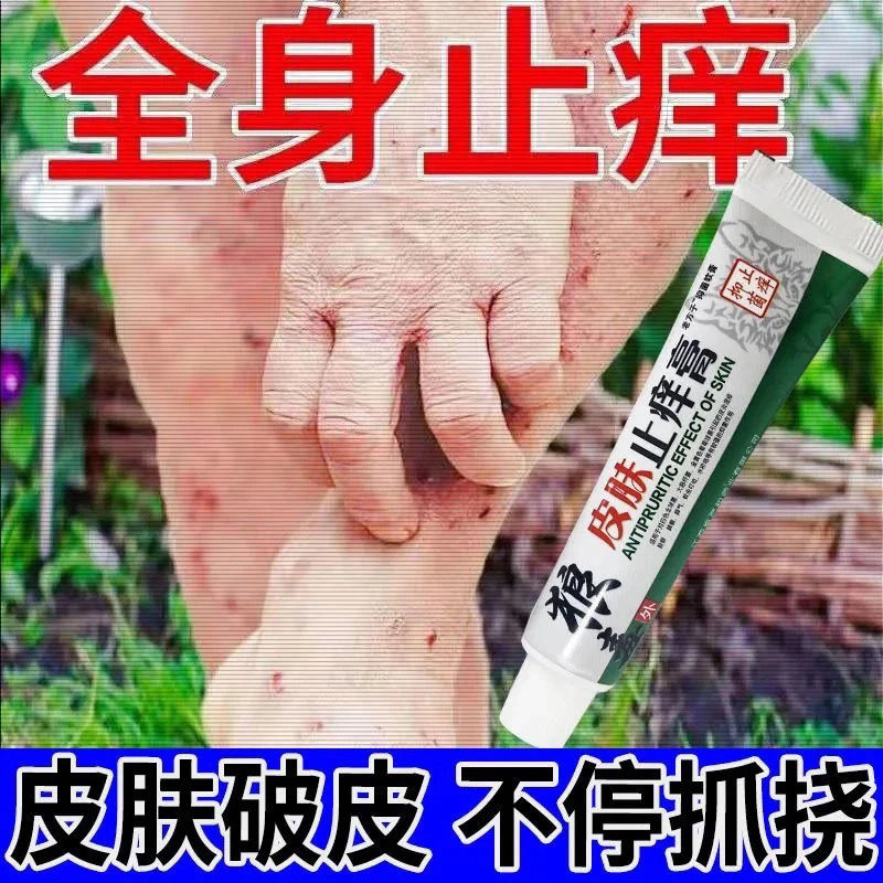 【专攻各种痒】快止痒一抹用于蚊虫叮咬皮癣湿疹抑菌止痒膏