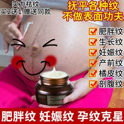 【产后修复】去祛除妊裖纹孕期预防淡化伤疤皮肤修复