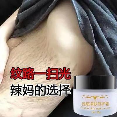 74788/去妊娠纹产后修复霜产前预防紧致肚皮去除肥胖纹生长纹疤克星孕妇